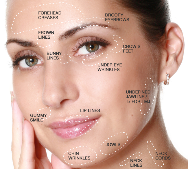 Injectable Area Guide (Botox® /Dysport® /Xeomin® )