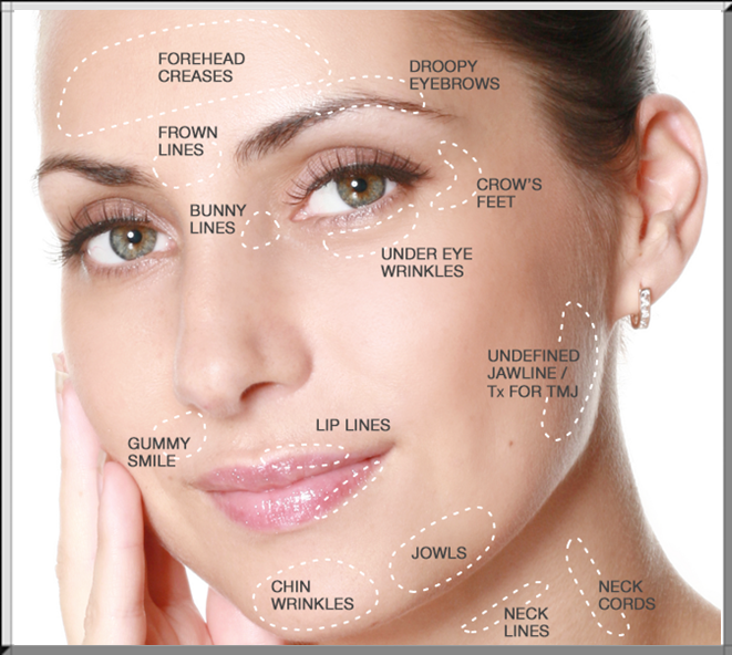 advanced-botox-treatment-areas-platinum-aesthetics-mobile-mespa-2