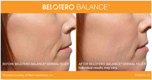 belotero-profile