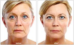 juvederm-removes-those-lines-effortlessly-at-platinum-aesthetics-mobile-medspa