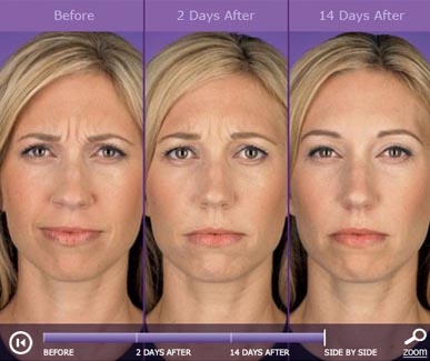 botox-before-and-after-6-387