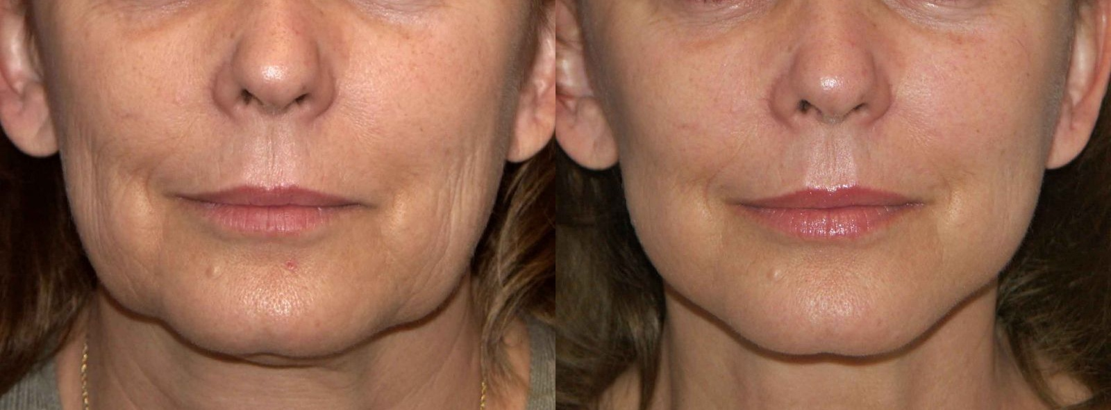 cosmetic-before-after-lower-face-rejuvenation-female-40s